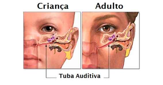 Como é o ouvido de uma criança